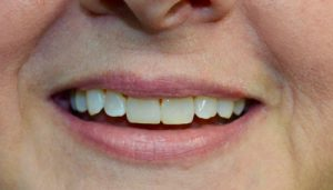 chipped-broken-teeth-after-img
