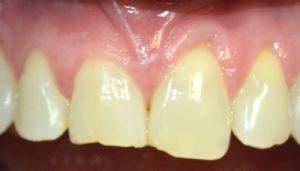 chipped-broken-teeth-before-img