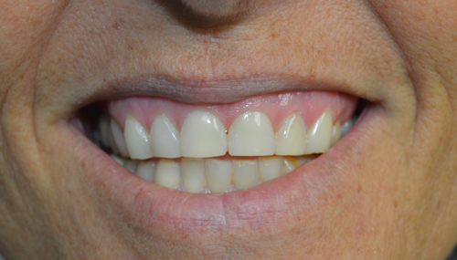 discolored-worn-teeth-after-image