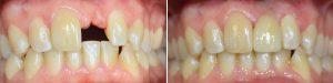 missing-teeth-banner-img