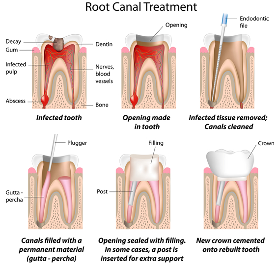 root-canal-treatment-img